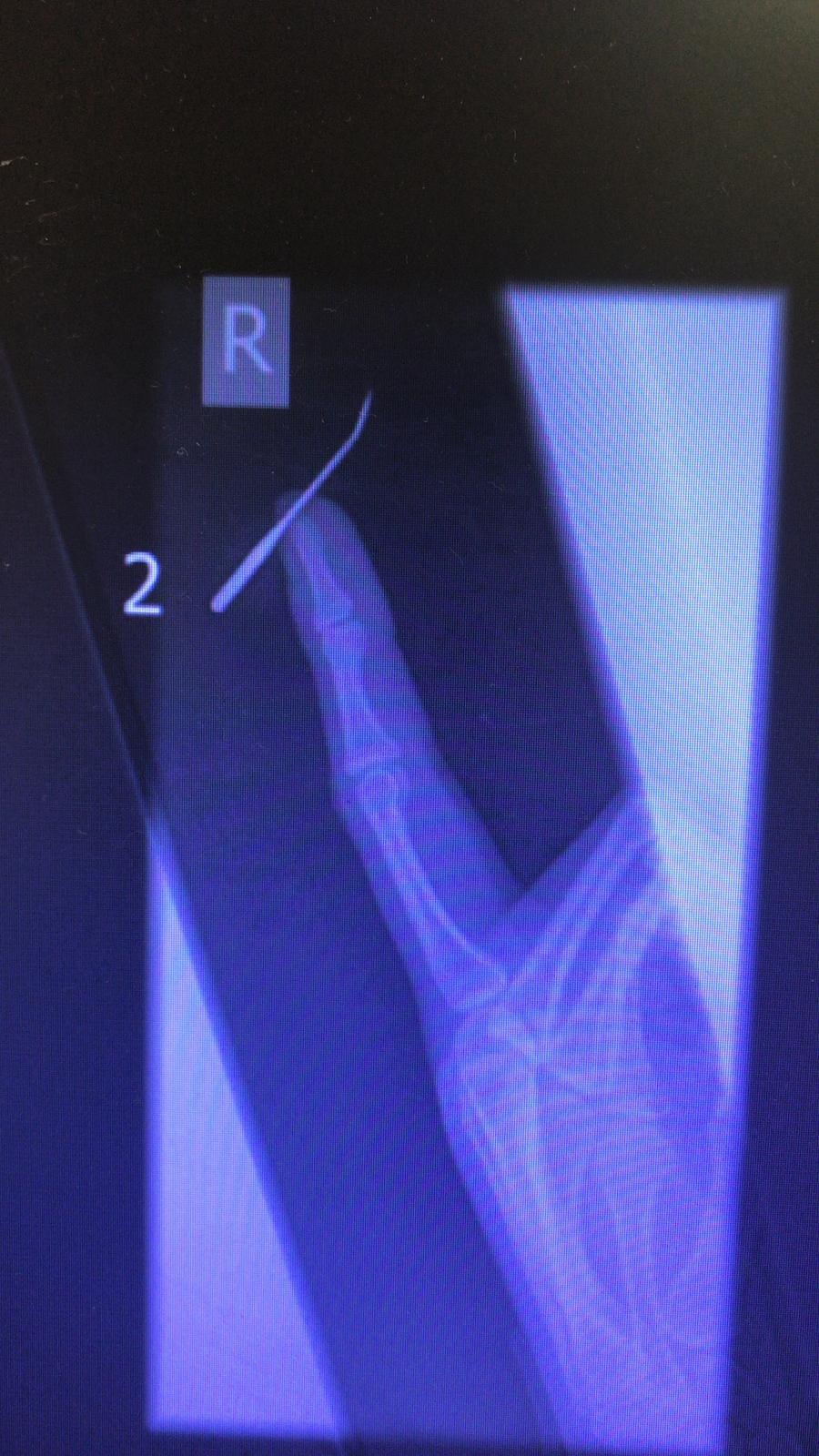 צילום רנטגן של המחט באצבעה של התופרת צילום: דוברות מיון טרם
