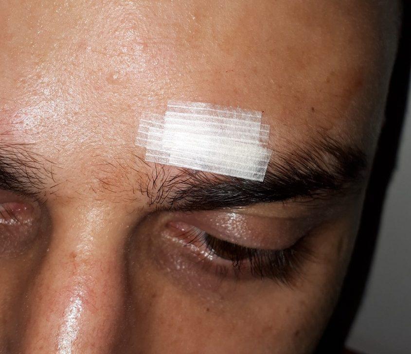 בן לוי שהותקף בדרכו לתפוס מחסה לאחר אזעקה. צילום: פייסבוק